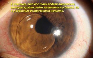 Лечение вывиха хрусталика глаза у человека