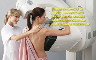 Что делать при ушибе молочной железы