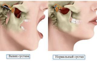 Симптомы, техника вправления и лечение вывиха нижней челюсти