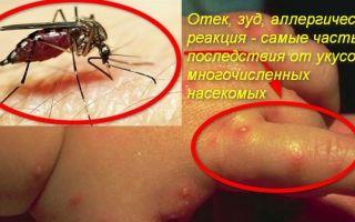 Про мази от укусов насекомых