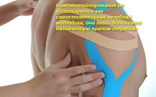 Как правильно делать тейпирование плеча