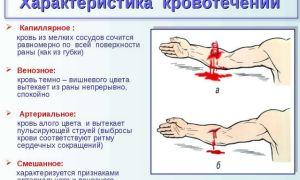 Оказание первой помощи при артериальном кровотечении