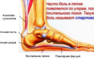 От чего боль в пятке при ходьбе