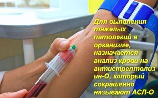 Анализ крови АСЛО (Антистрептолизин О) — что это такое