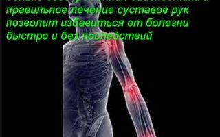 Почему болят суставы рук и что делать