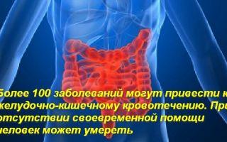 Оказание неотложной помощи при желудочном кровотечении
