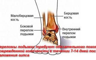 О реабилитации после перелома лодыжки после снятия гипса