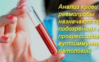 Про анализ крови на ревмопробы и его расшифровка