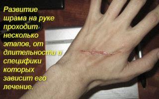 О том, как убрать шрамы от порезов на руке
