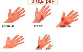 Оказание первой помощи при порезах