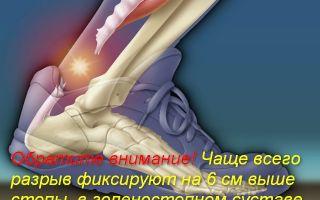 Все о разрыве аххилова сухожилия