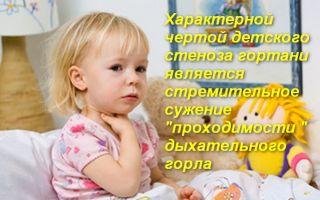 Неотложная помощь при стенозе гортани у детей