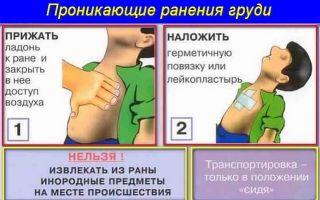 Что необходимо делать при ранении плевральной полости