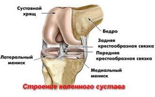 Про симптомы и лечение повреждения мениска коленного сустава