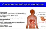 Оказание неотложной помощи при остром аппендиците