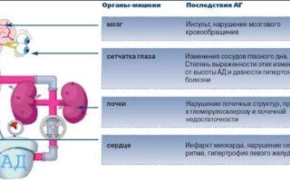 Оказание неотложной помощи при гипертоническом кризе