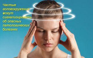 Что надо делать при головокружении в домашних условиях