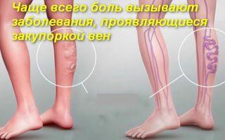 О том, почему болят вены на ногах