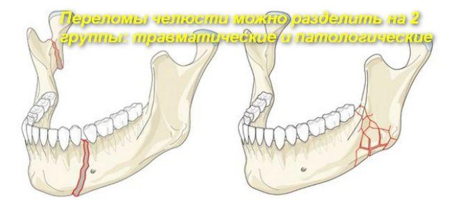 Как оказать первую помощь при переломе челюсти