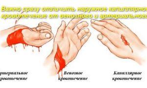 Как оказать первую помощь при капиллярном кровотечении