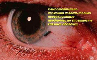 Оказание первой помощи при попадании инородного тела в глаз