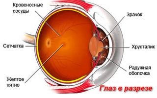 Все про разрыв сечатки глаза