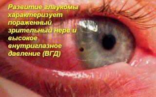 Оказание неотложной помощи при остром приступе глаукомы
