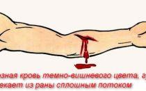 Оказание первой помощи при венозном кровотечении