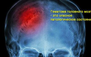 Как лечить гематому на голове после ушиба