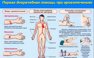 Как оказать первую помощь при кровотечениях