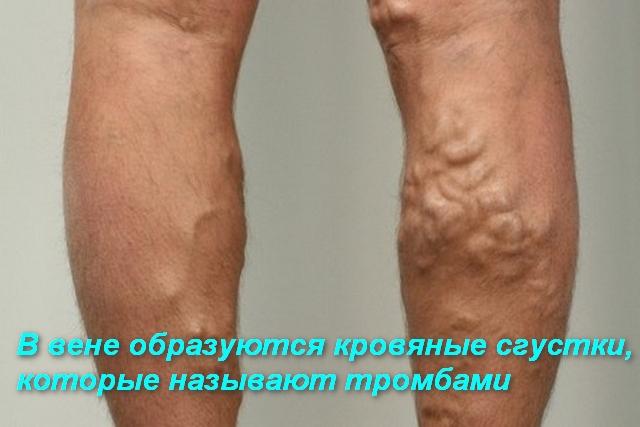 ноги с варикозным расширением вен