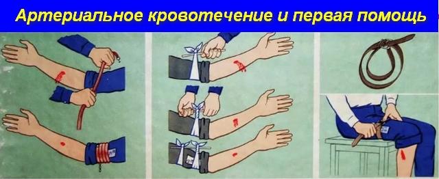 наложение повязок на раны