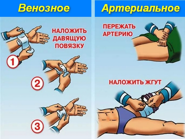 руки и ноги с повязками на них