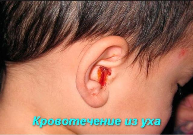 у мальчика кровь из уха