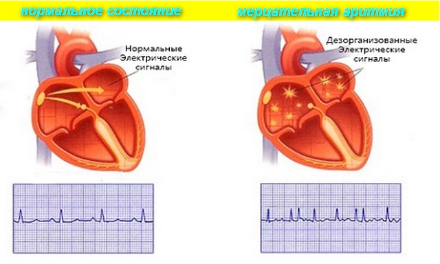 схема работы сердца при аритмии