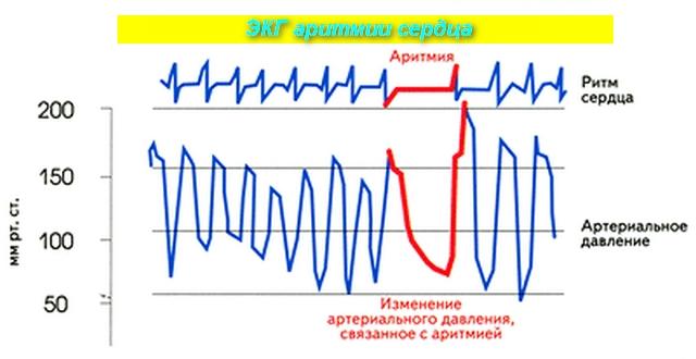 рисунок ЭКГ с пояснениями