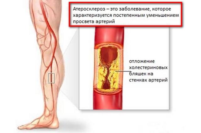Отчего болят ноги ниже колен и слабость thumbnail
