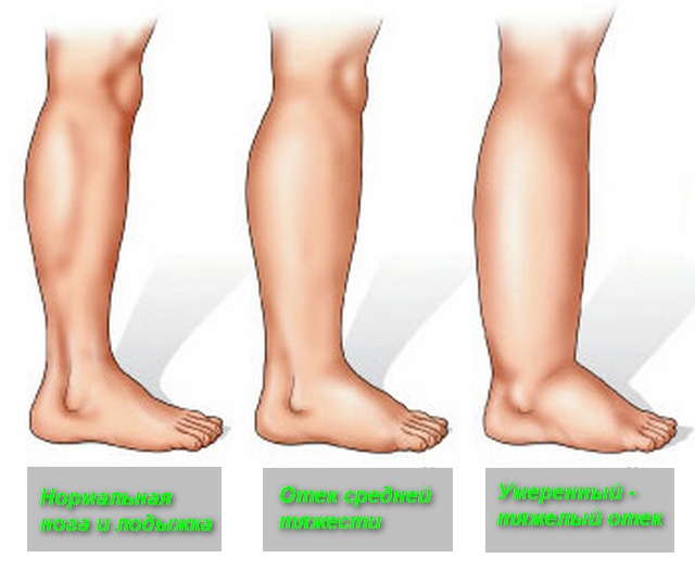 3 картинки ног