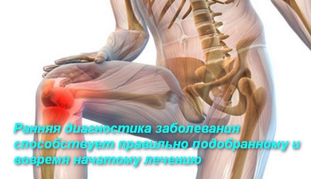 скелет человека с больным коленом
