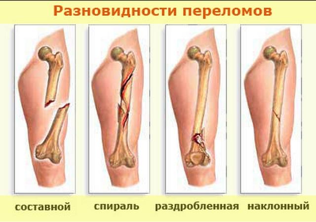 рисунки видов переломов
