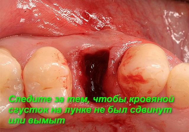 кровававая лунка после удаления зуба