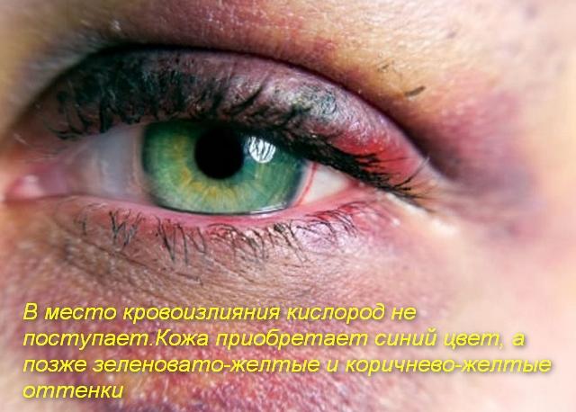 гематома вокруг глаза