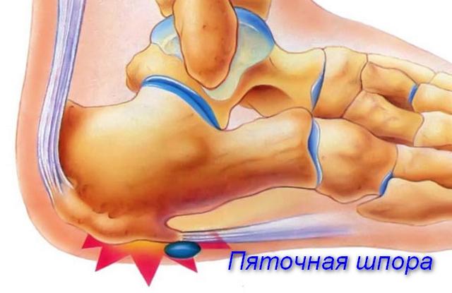 схема пяточной кости