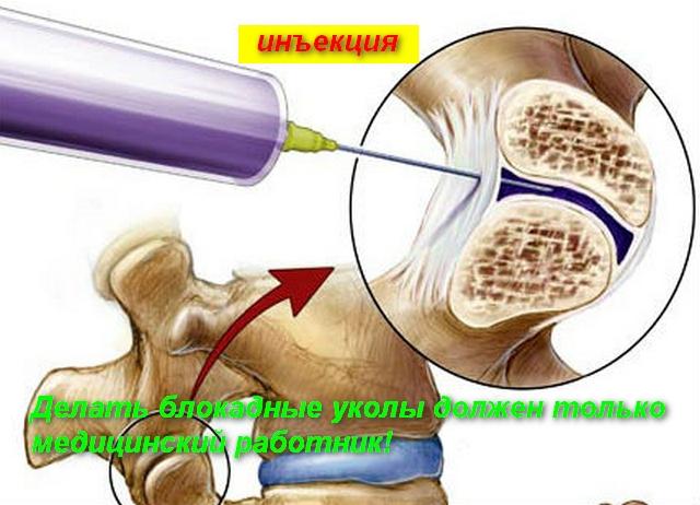схема укола в спину