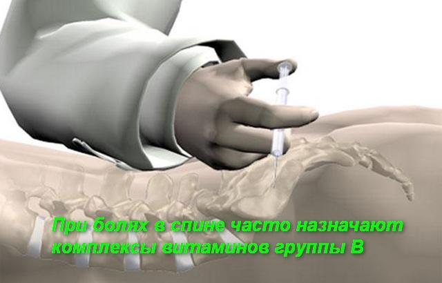 схема укола в позвоночник