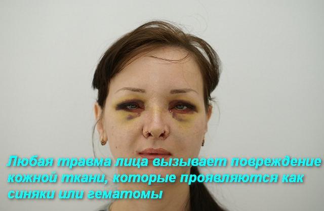 женщина с синяками под глазами
