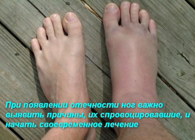 две ноги разных размеров