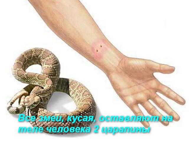 змея и укушенная рука человека