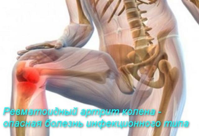 рисунок человека,который держится за колено