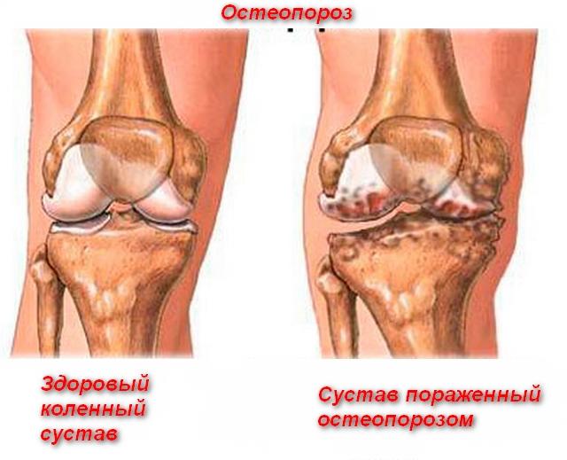 колено здоровое и больное